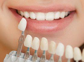 Covina Cosmetic Dentist Smile Compared With Tooth Color Chart Porcelain Veneers