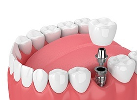 single dental implant in the mouth