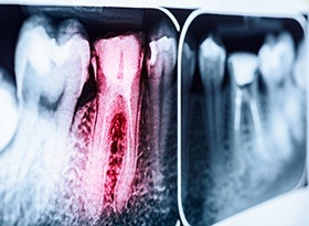 X-rays with root canal treated tooth highlighted red