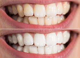 Smile before and then after teeth whitening