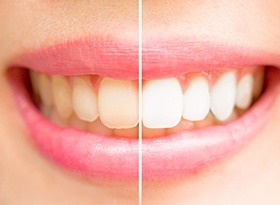 Smile split half before and half after teeth whitening