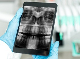 Hands holding tablet computer with dental x-rays displayed