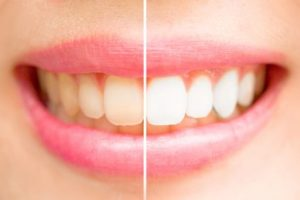 Woman's smile before and after whitening