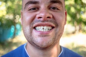 man smiling with chipped tooth