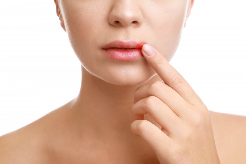 Woman pointing to mouth sore on her upper lip